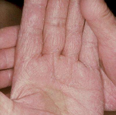 Tinea Corporis - Symptoms, Diagnosis, Treatment of Tinea ...